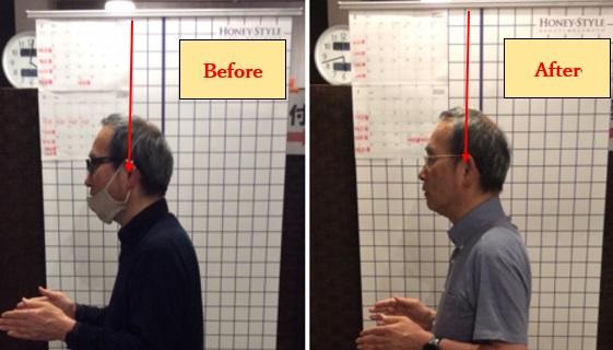 猫背の改善 治療前(Before)治療後(After)